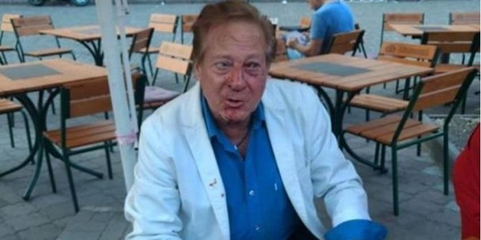 В Одессе избили 71-летнего американского певца Подробнее читайте на Юж-Ньюз: http://xn----ktbex9eie.com.ua/archives/9444
