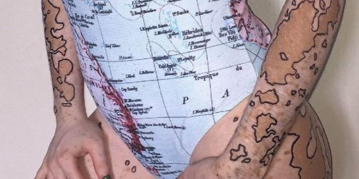 Ученые рассказали о загадочном кожном заболевании Подробнее читайте на Юж-Ньюз: http://xn----ktbex9eie.com.ua/archives/20398
