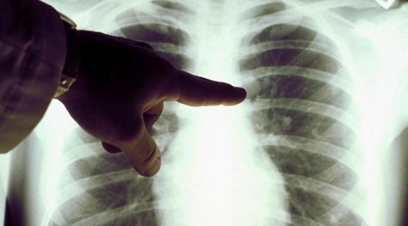 Вирусная пневмония: больницы оказались переполнены Подробнее читайте на Юж-Ньюз: http://xn----ktbex9eie.com.ua/archives/71582