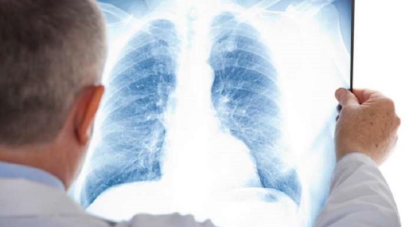 Медики розповіли про 6 ознак безсимптомної пневмонії