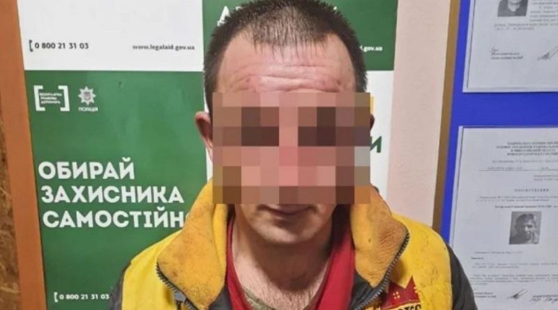В Николаевской области полиция задержала изверга, облившего кислотой жену и детей
