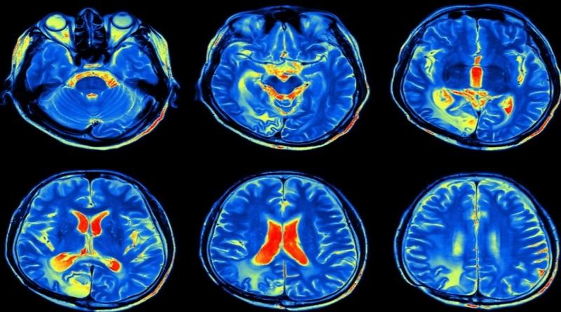 Описана способность коронавируса поражать головной мозг