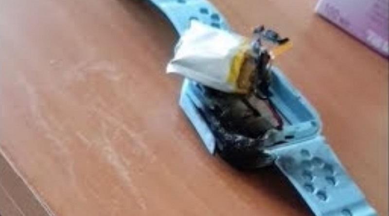 В Киеве на руке у первоклассницы взорвались смарт-часы: ребенок госпитализирован